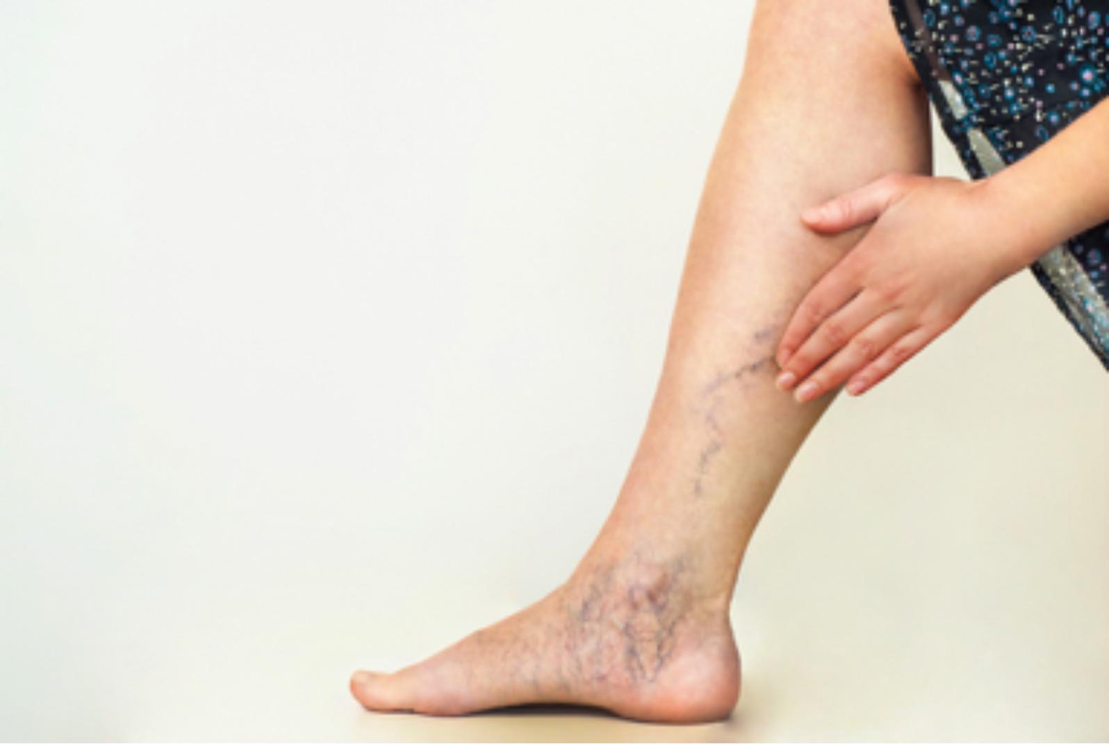 tratamentul venelor varicoase prin injecții dans și varicoză
